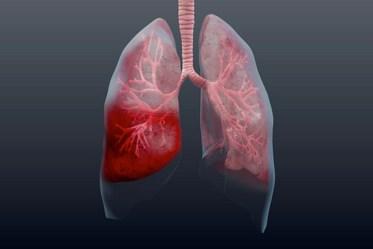 Ускладнення при пневмонії