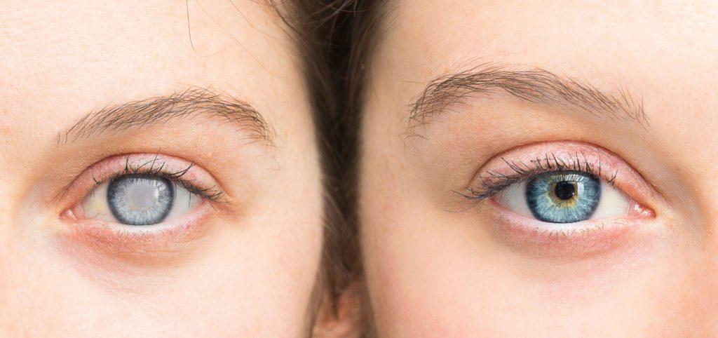 Причины развития катаракты