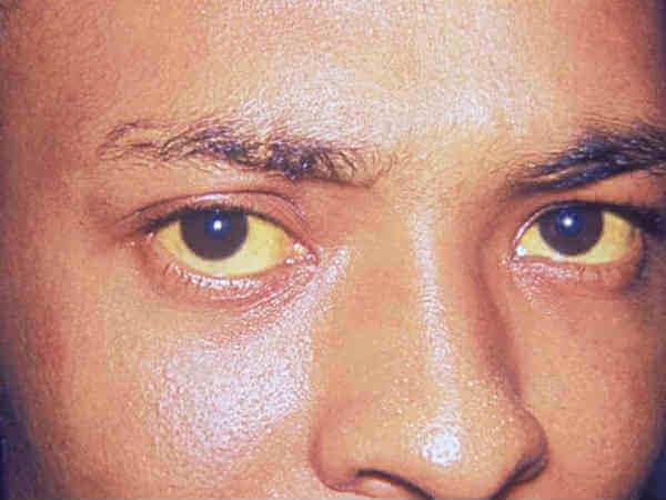 Симптоми гепатіту