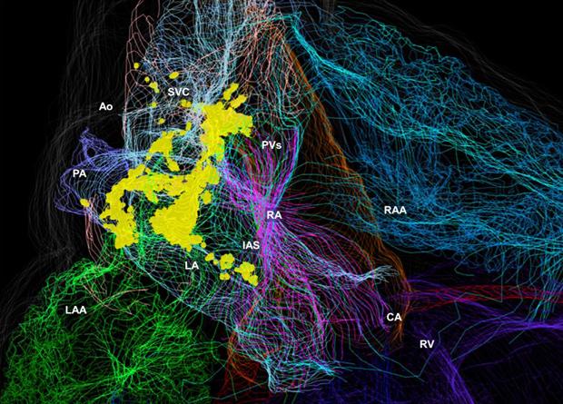 мапа нейронів серця