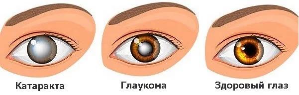 Глаукома та катаракта. Різниця та порівняння
