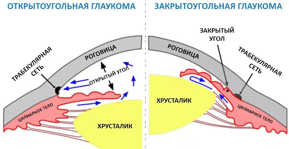 Виды глаукомы и ее формы