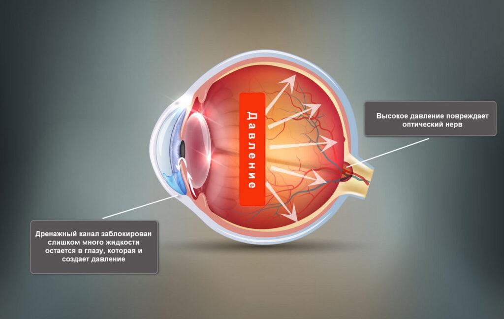 Глаукома: признаки, симптомы, методы лечения
