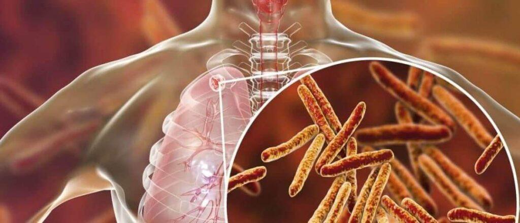 Збудники туберкульозу