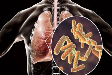 Причини розвитку пневмонії